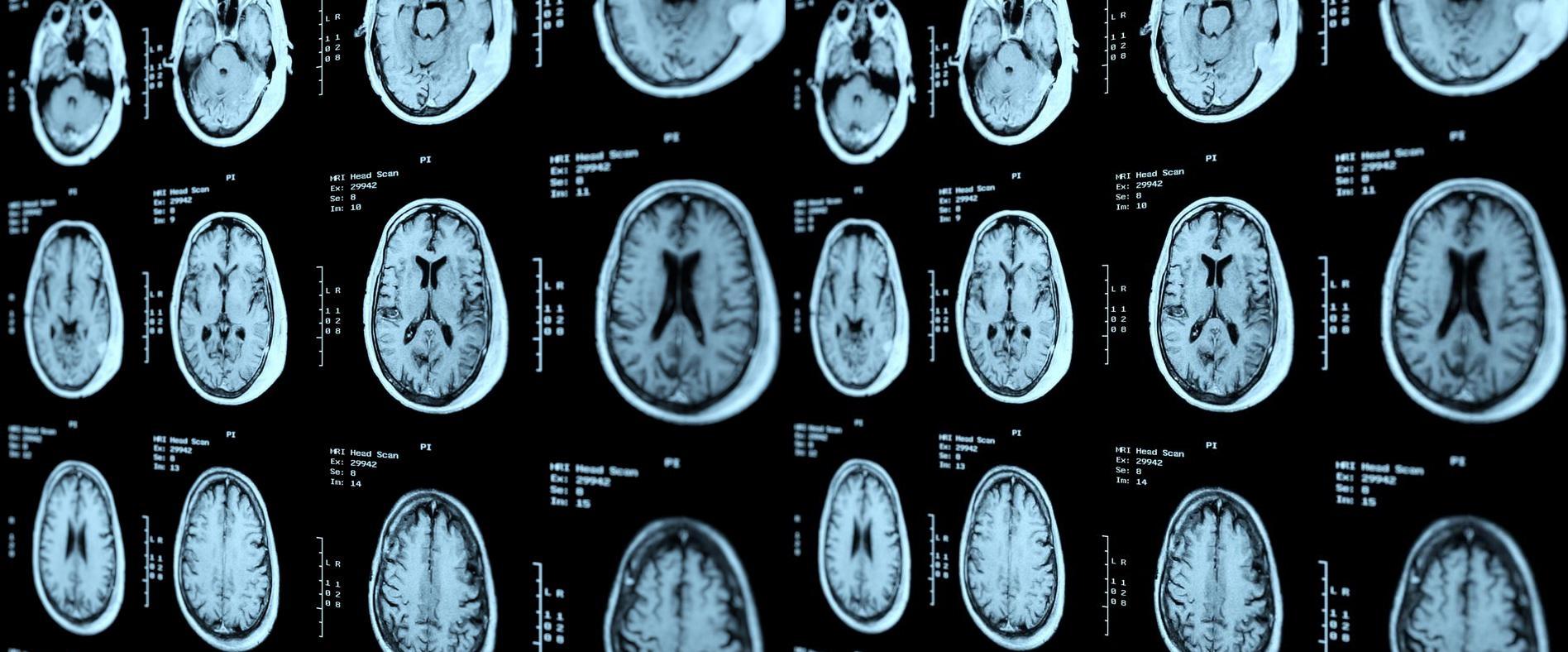 Using Machine Vision in Healthcare